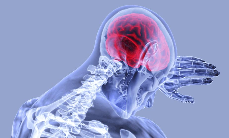Inflammation brain stroke