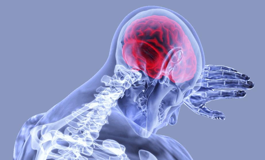 التهاب السكتة الدماغية