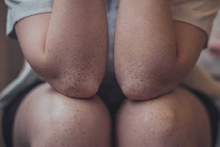 photograph of knees