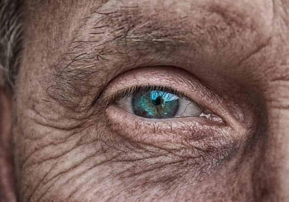 Старая глаукома мужского глаза