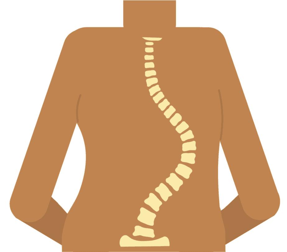 La scoliose est une courbure latérale de la colonne vertébrale.