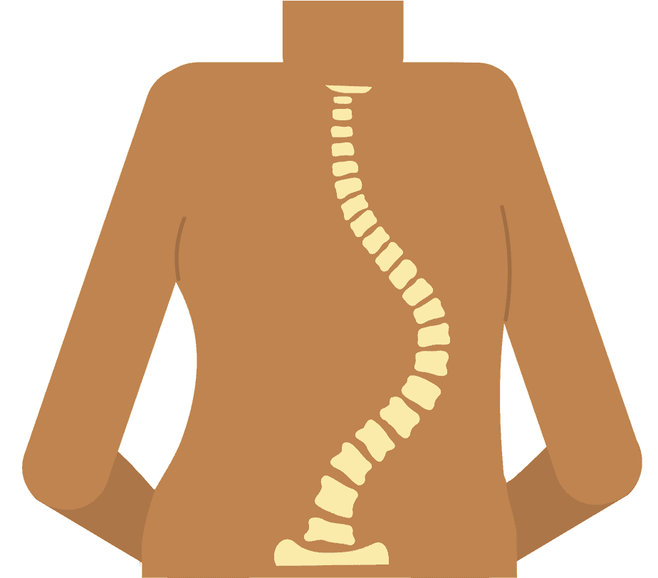 Scoliosis is a sideways curvature of the spine.