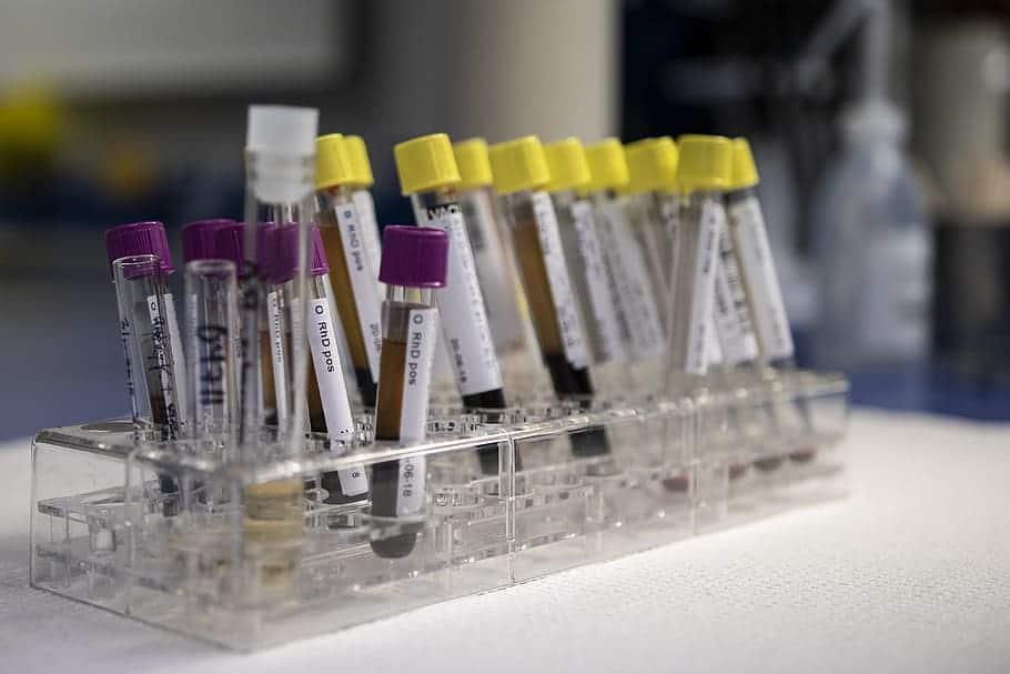 Pruebas de laboratorio