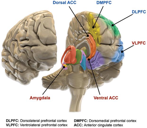 Различные участки мозга, пораженные биполярным расстройством