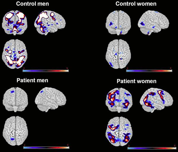 Diferencias en las exploraciones cerebrales entre controles y personas con esquizofrenia