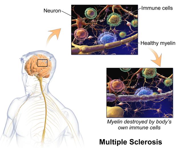 Biologische Auswirkungen von Krankheiten in Neuronen