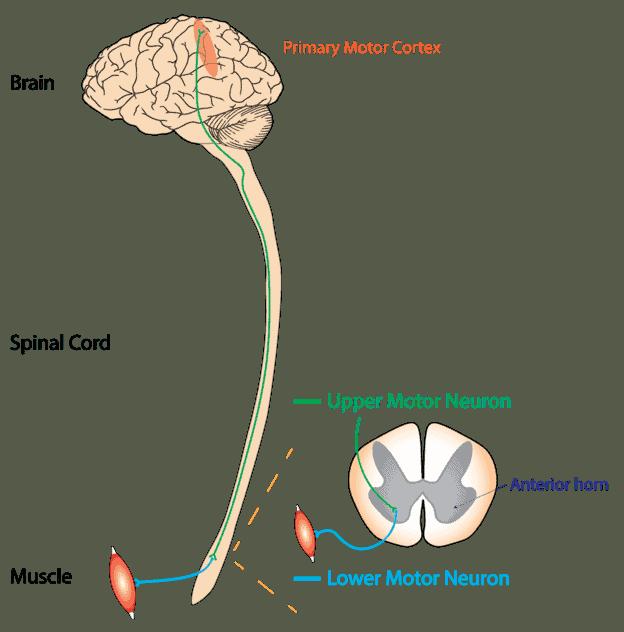 Obere und untere Neuronen in Bezug auf ALS