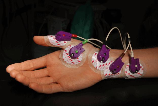 Ein Elektromyographietest
