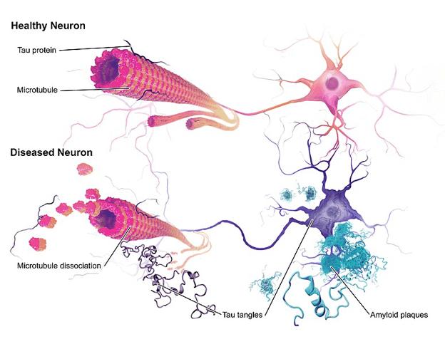 Болезнь нейронов при болезни Альцгеймера