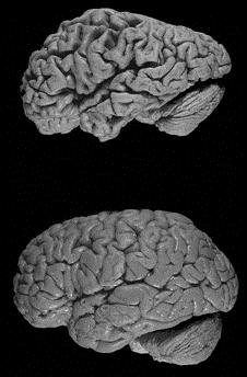 Мозг Альцгеймера по сравнению со здоровым мозгом