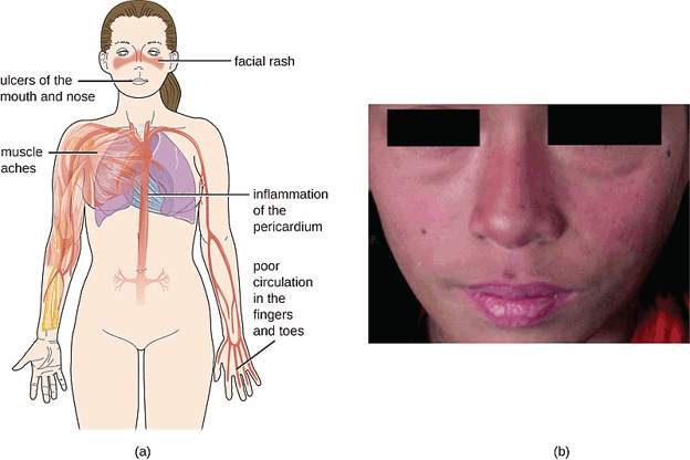Signs and symptoms of lupus including internal and external symptoms