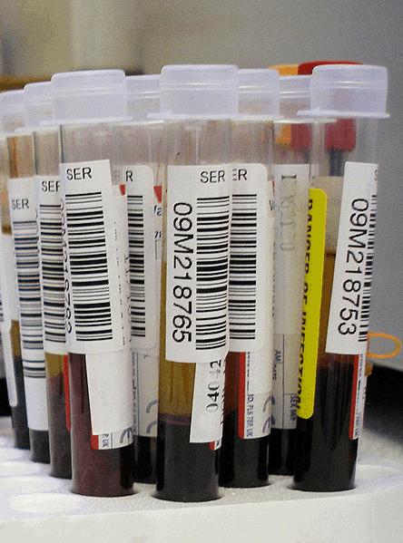 Exames de sangue