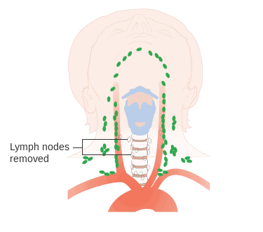 Diagram showing after surgery for medullary thyroid cancer