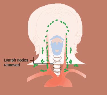 Schéma montrant après une chirurgie pour un cancer médullaire de la thyroïde