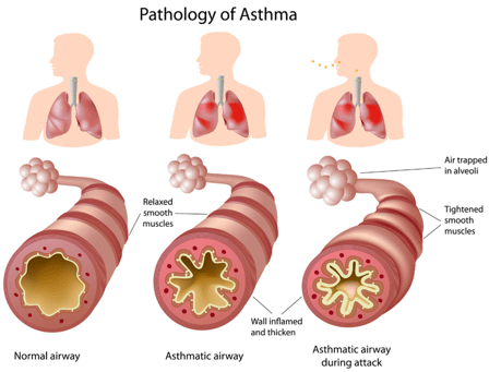 Pathology of asthma