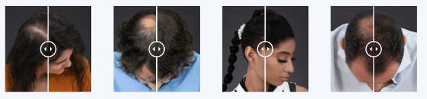 Résultats avec la brosse Capillus Keratin