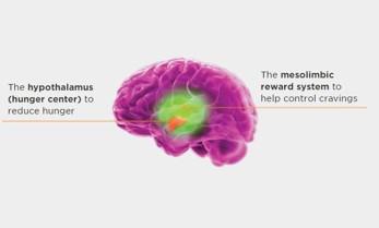 Áreas do cérebro onde o Contrave afeta