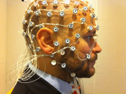 EEG, a tool used to diagnose epilepsy