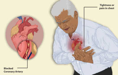 Congestive heart disease during a heart attack