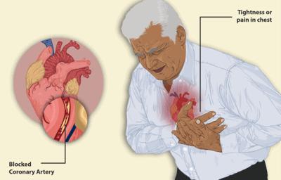 心臓発作中のうっ血性心疾患