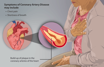 Congestive heart failure in combination with coronary heart disease
