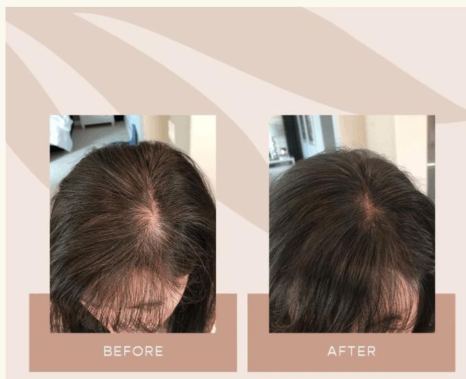 Resultado Vegamour antes e depois
