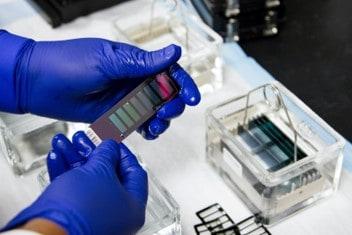 Autosomal DNA test
