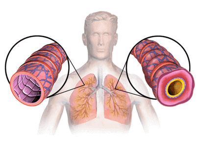 Healthy and asthma lungs