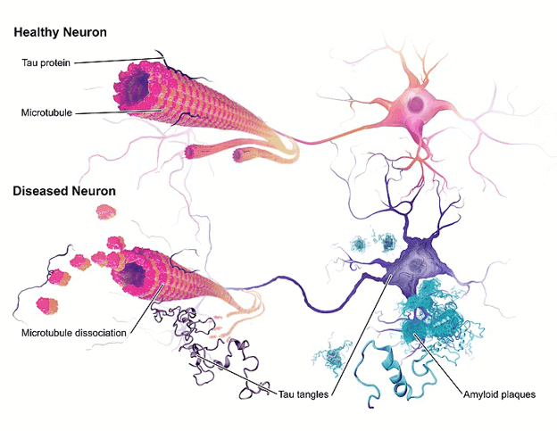 Neuron disease in Alzheimer's