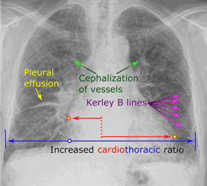 A chest radiograph