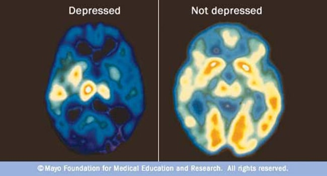 Depression Overview: Emotional Symptoms, Physical Signs, and More