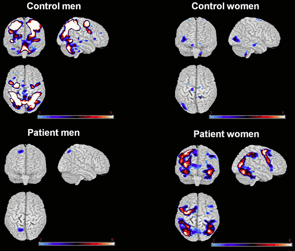 Differences in brain scans between controls and persons with schizophrenia