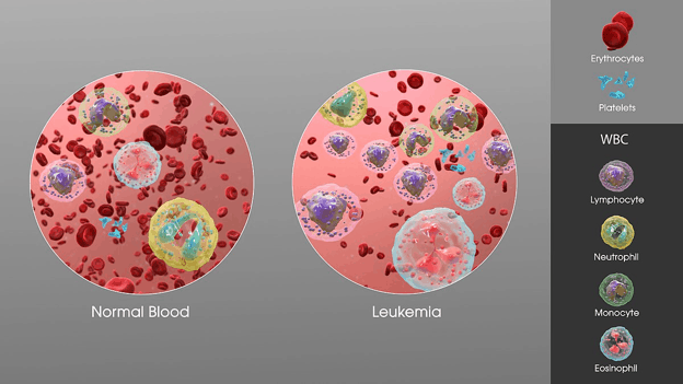 Normal and leukemia blood cells