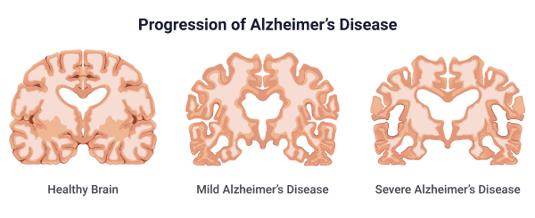 Is Alzheimers genetic? Alzheimer's disease progression shown as an illustration
