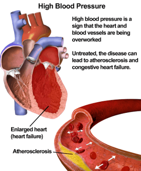 What it looks like in the heart and vessels