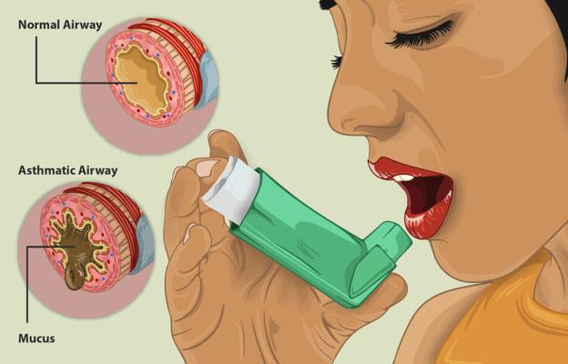 A patient using an inhaler
