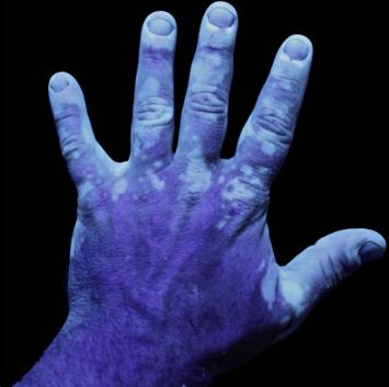 Visualization under UV light