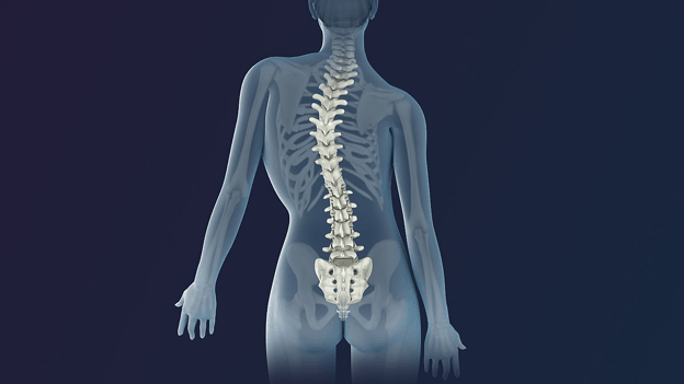 An animation of scoliosis