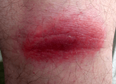 A localized case of inflammation