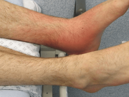 An ankle showing signs of inflammatory markers