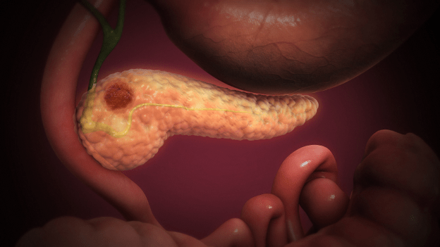 A tumor on the pancreas