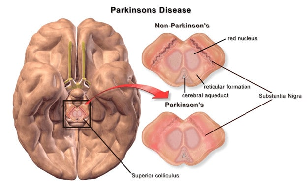 Non-Parkinson's and Parkinson's brain
