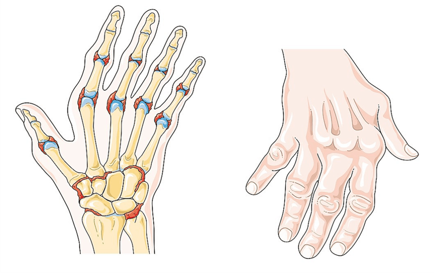 A hand demonstrating signs of rheumatoid arthritis