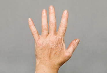 Vitiligo on lighter skin