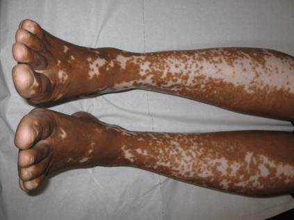 Vitiligo on the legs