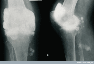 An x-ray of a knee