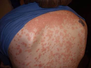 Guttate psoriasis on the back