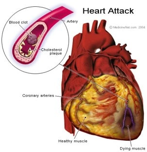 A blood clot and heart attack