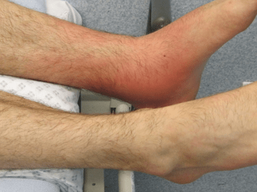 Inflammation caused by a bacteria infection