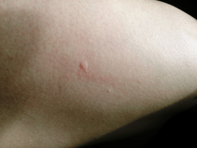 Inflammation caused by an insect bite